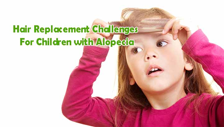 alopecia in children