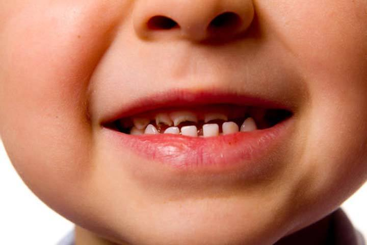 Are Cavities Common for Children Under 5